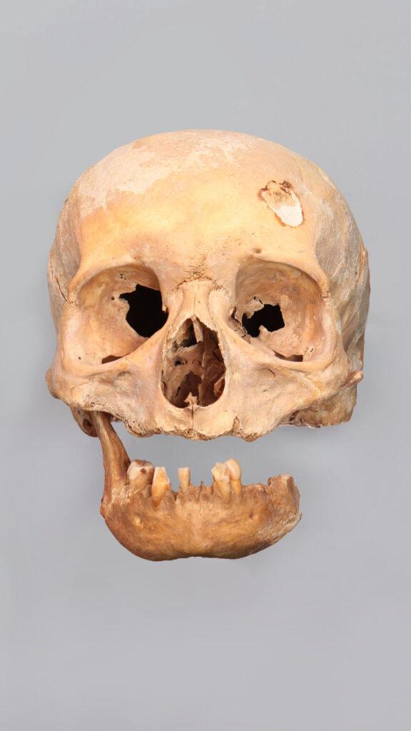 Skull damaged over time