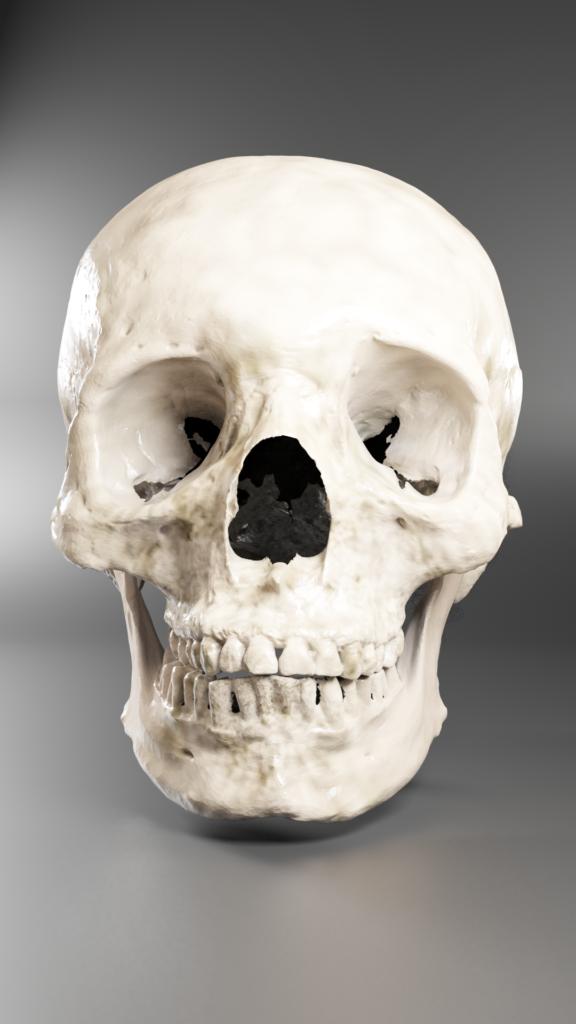 3D Digital restored skull